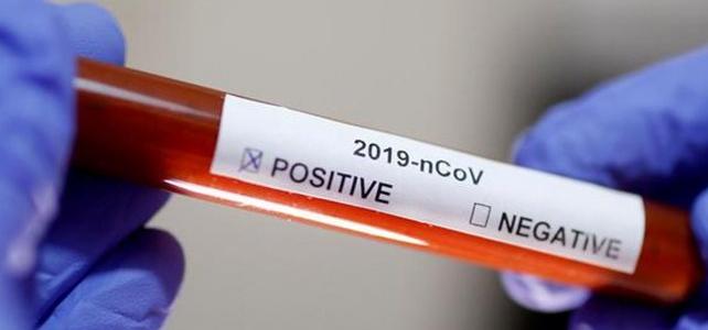 La provincia de Santa Fe sumó 12 nuevos casos de coronavirus y ya son 55