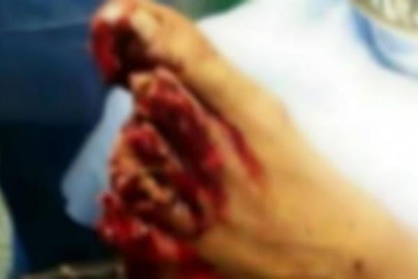 """Tamara Alves confirmó que la foto del pie de Toranzo """"era"""" real"""